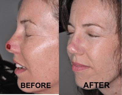Mohs Micrographic Surgery Kind Dermatology And Medical Spa Santa Barbara Ca Dermatologist